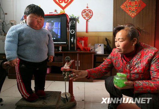 Overweight Chinese baby girl in Shanxi, China